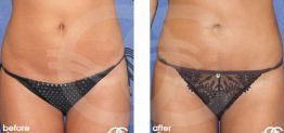 Liposuction Before After Lipoplasty Photo Ocean Clinic case 01 Marbella