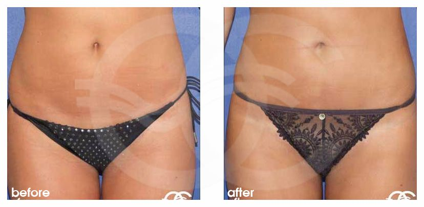 Liposuction LIPOSCULPTURE ante/post-op profil