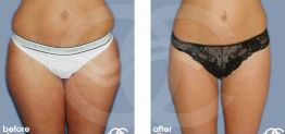 Liposuction Before After Lipoplasty Photo Ocean Clinic case 02 Marbella