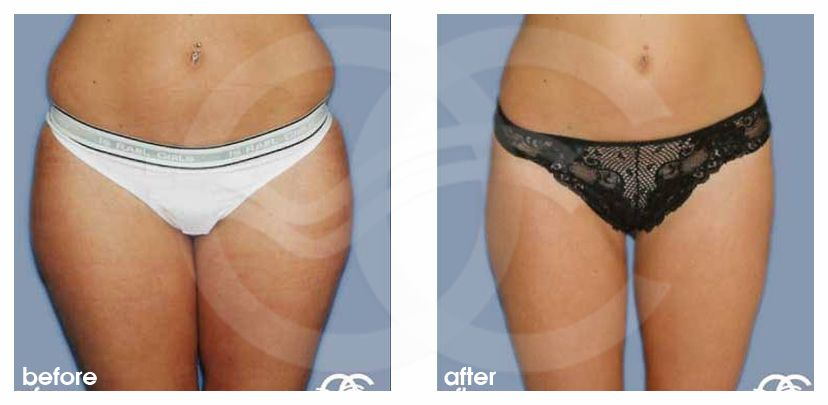Fettabsaugung 02 LIPOSUKTION LOVE HANDELS UND REITERHOSEN before after forntal