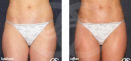 Liposucción Antes y Después Foto Ocean Clinic caso 03 Marbella Málaga