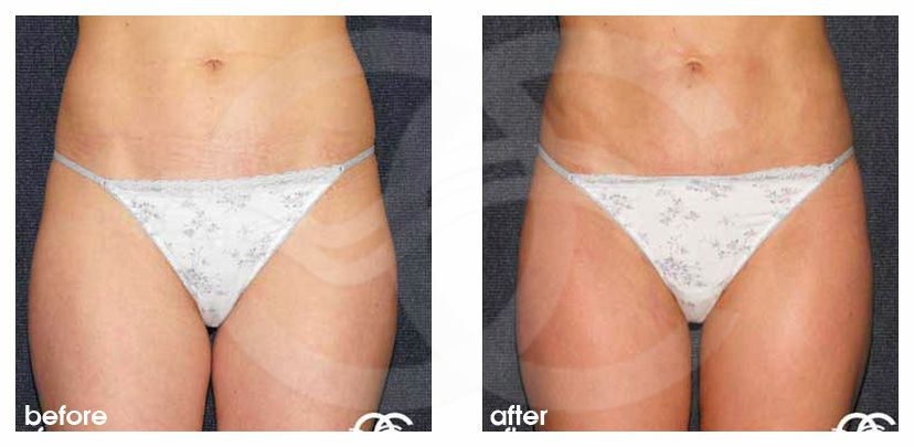 Liposuction Before After Lipoplasty Inner and Outer Thighs Photo frontal Marbella Ocean Clinic