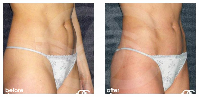 Liposuction Before After Lipoplasty Inner and Outer Thighs Photo side Marbella Ocean Clinic