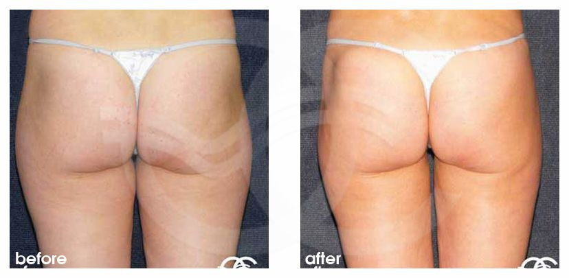 Liposuction Before After Lipoplasty Inner and Outer Thighs Photo profile Marbella Ocean Clinic
