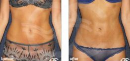 Liposuction Before After Lipoplasty Photo Ocean Clinic case 04 Marbella