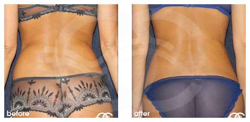 Liposuction LOVE HANDLES before after perfil