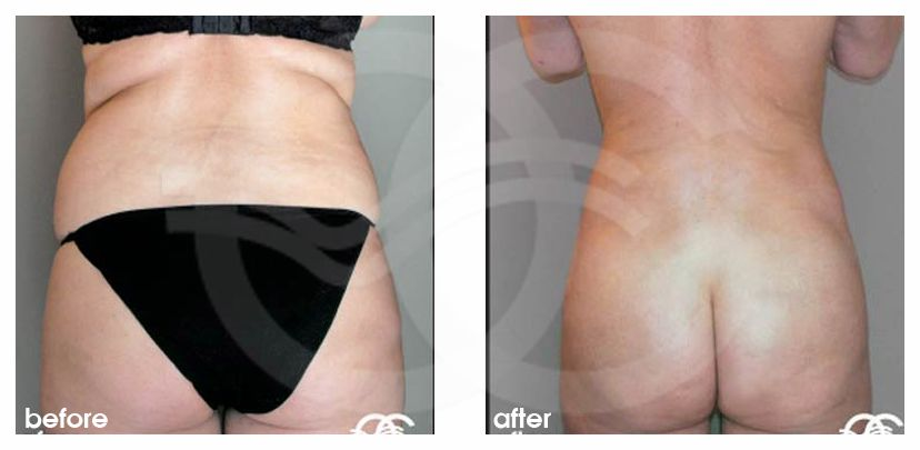 Liposuction BUTTOCKS before after forntal