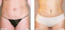 Liposuction Before After Lipoplasty Photo Ocean Clinic case 07 Marbella