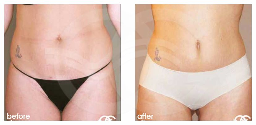 Liposuction ABDOMEN, WAIST AND LEGS before after forntal