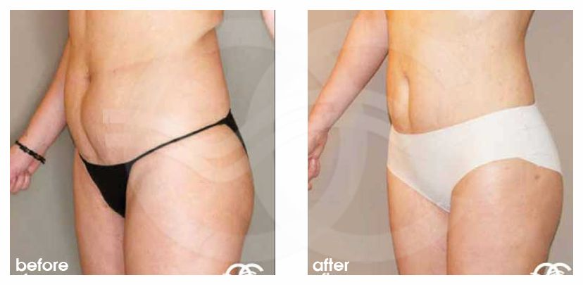 Liposuction Before After Lipoplasty Abdomen, Waist and Legs Photo side Marbella Ocean Clinic