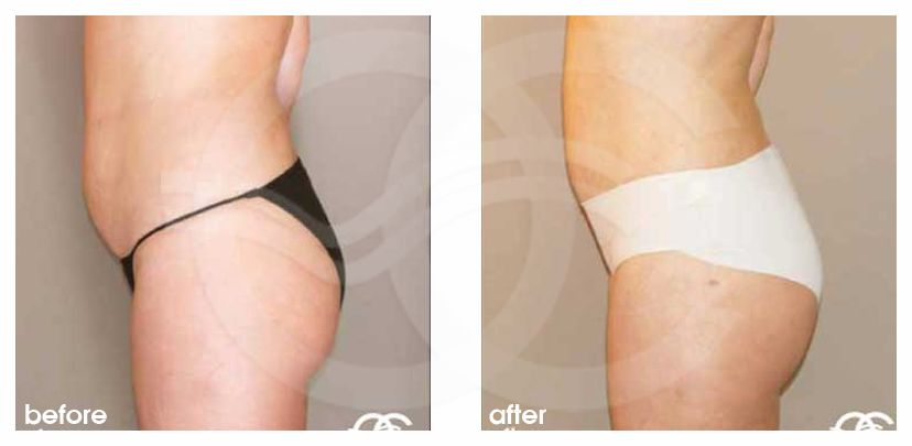 Liposuction ABDOMEN, WAIST AND LEGS before after perfil