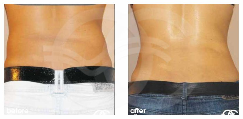 Liposuction Before After Lipoplasty Abdomen Photo profile Marbella Ocean Clinic