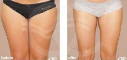 Liposuction Before After Lipoplasty Photo Ocean Clinic case 09 Marbella