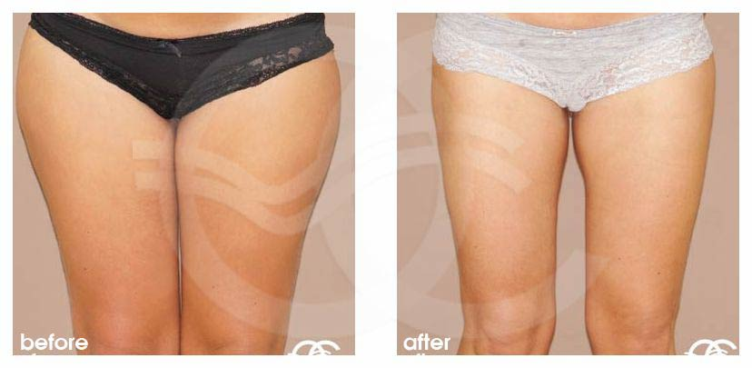 Liposuction HIPS INNER AND OUTER THIGHS before after forntal
