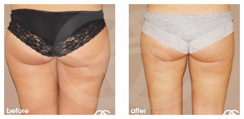 Liposuction HIPS INNER AND OUTER THIGHS before after side