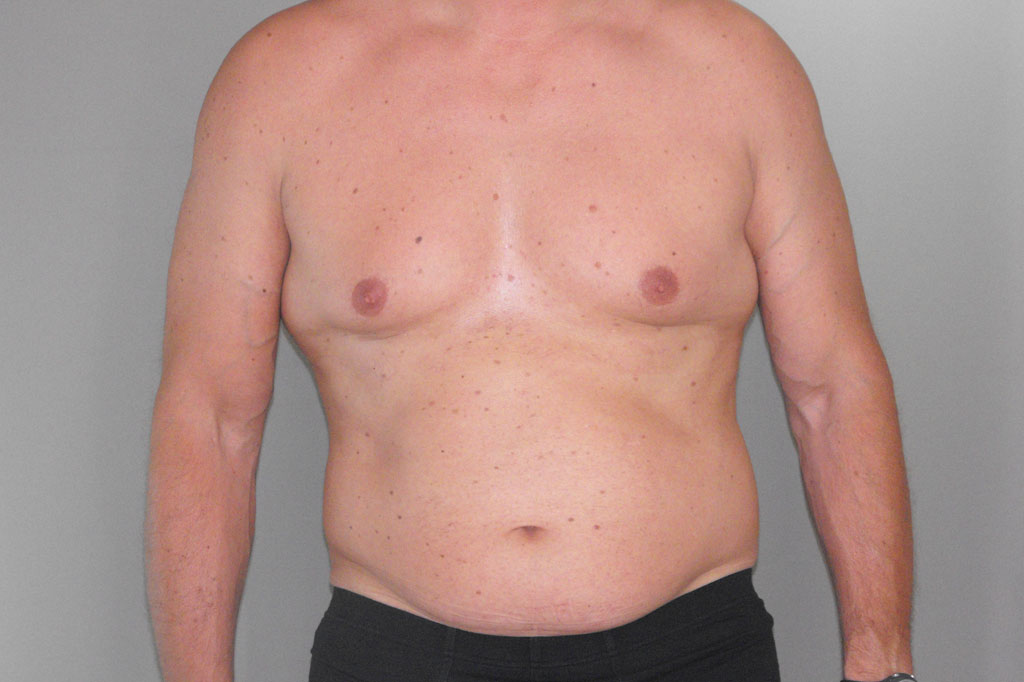 Gynecomastia MALE CHEST CONTOURING before forntal