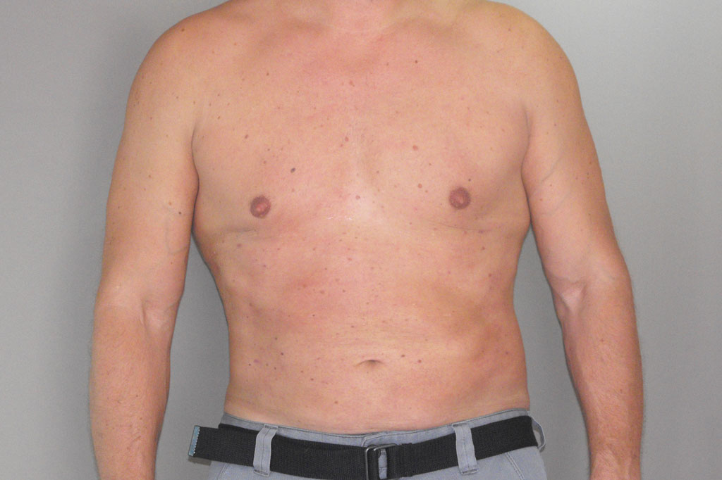 Gynecomastia MALE CHEST CONTOURING post-op profil