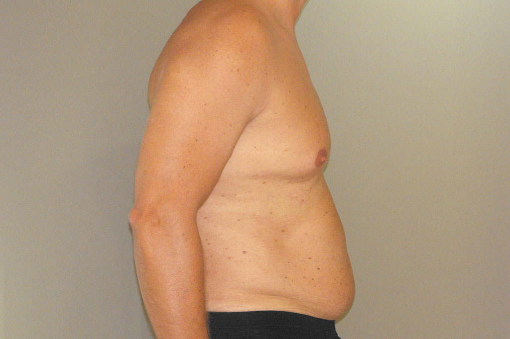 Gynecomastia MALE CHEST CONTOURING ante-op lateral