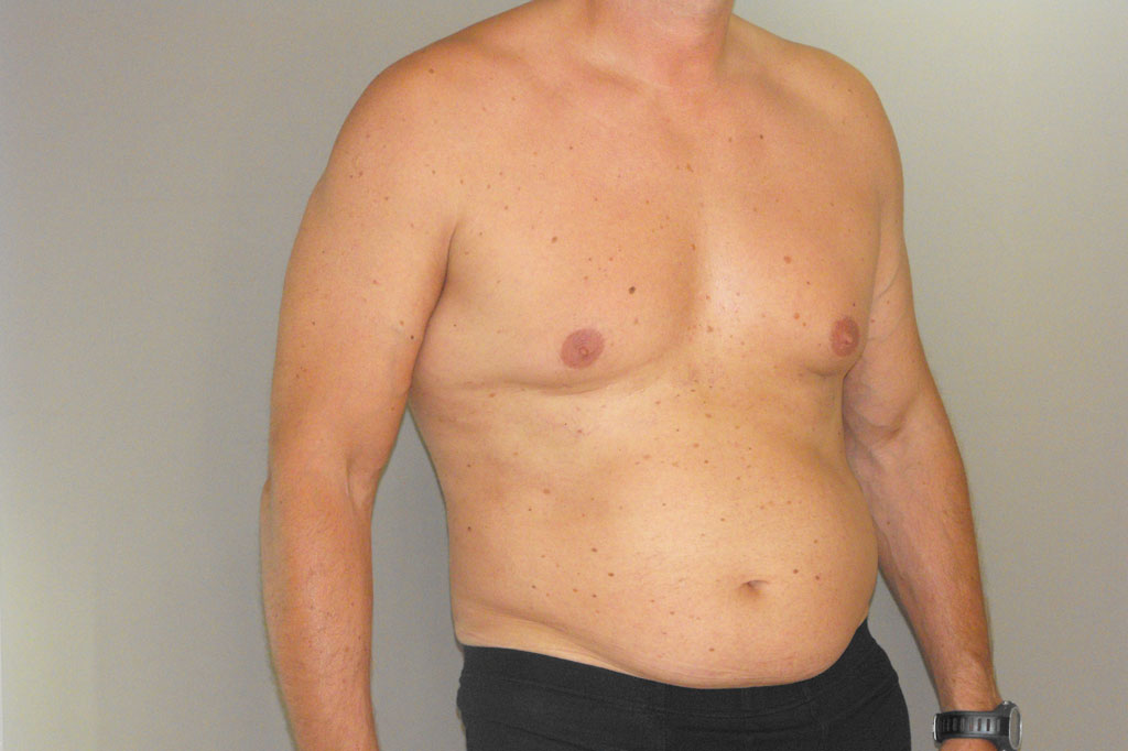 Gynecomastia MALE CHEST CONTOURING ante-op retro/lateral