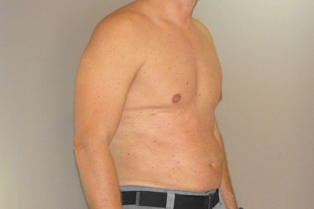 Gynecomastia MALE CHEST CONTOURING after profile