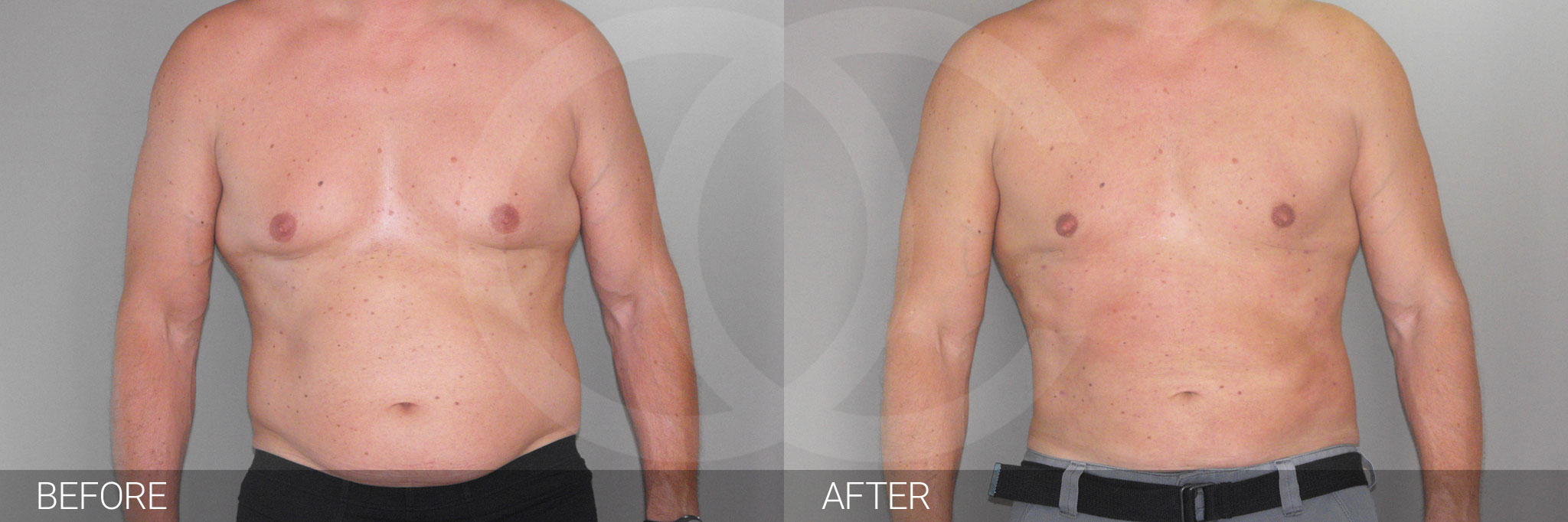 Gynecomastia MALE CHEST CONTOURING ante/post-op I
