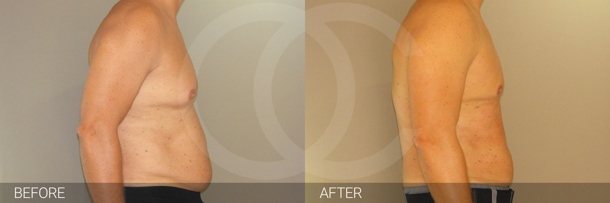 Gynecomastia MALE CHEST CONTOURING ante/post-op II