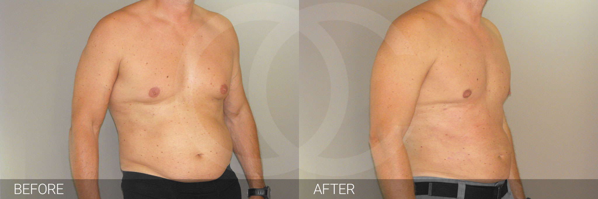 Gynecomastia MALE CHEST CONTOURING ante/post-op III
