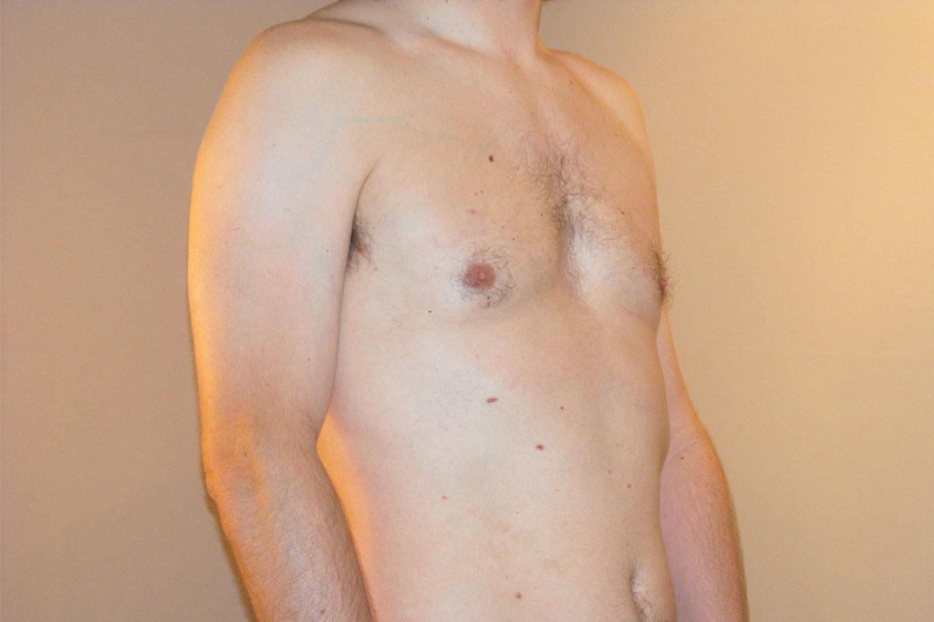 Gynecomastia with liposuction after side