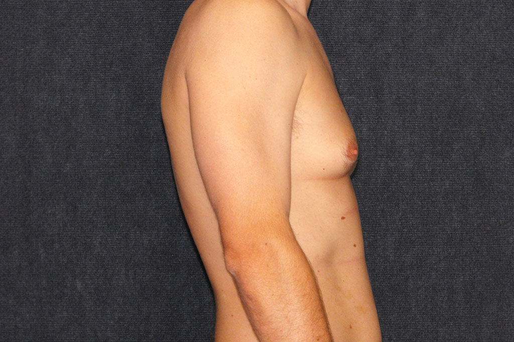 Gynecomastia with liposuction before profile