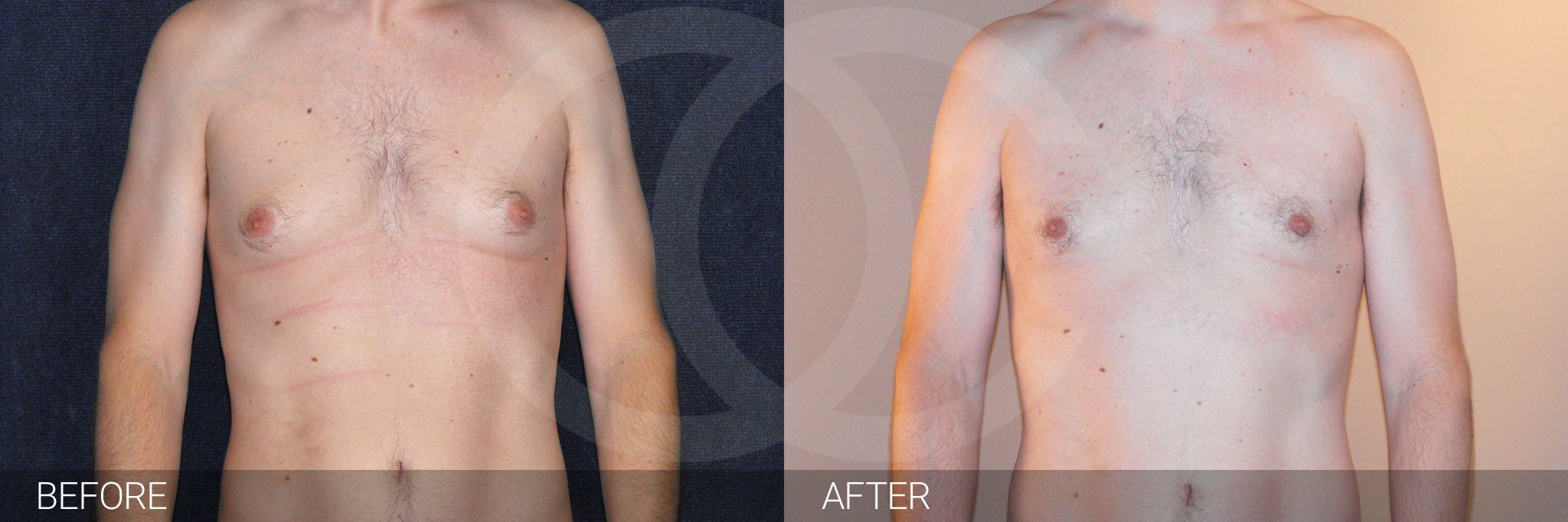 Gynecomastia with liposuction ante/post-op I