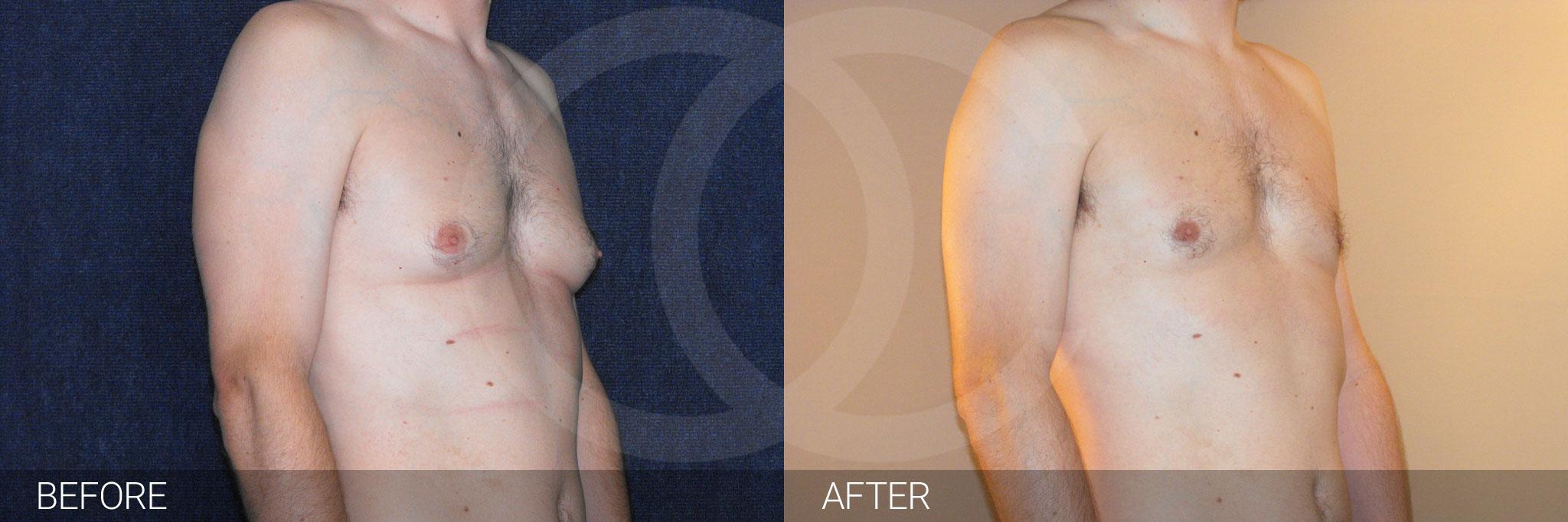 Gynecomastia with liposuction ante/post-op II