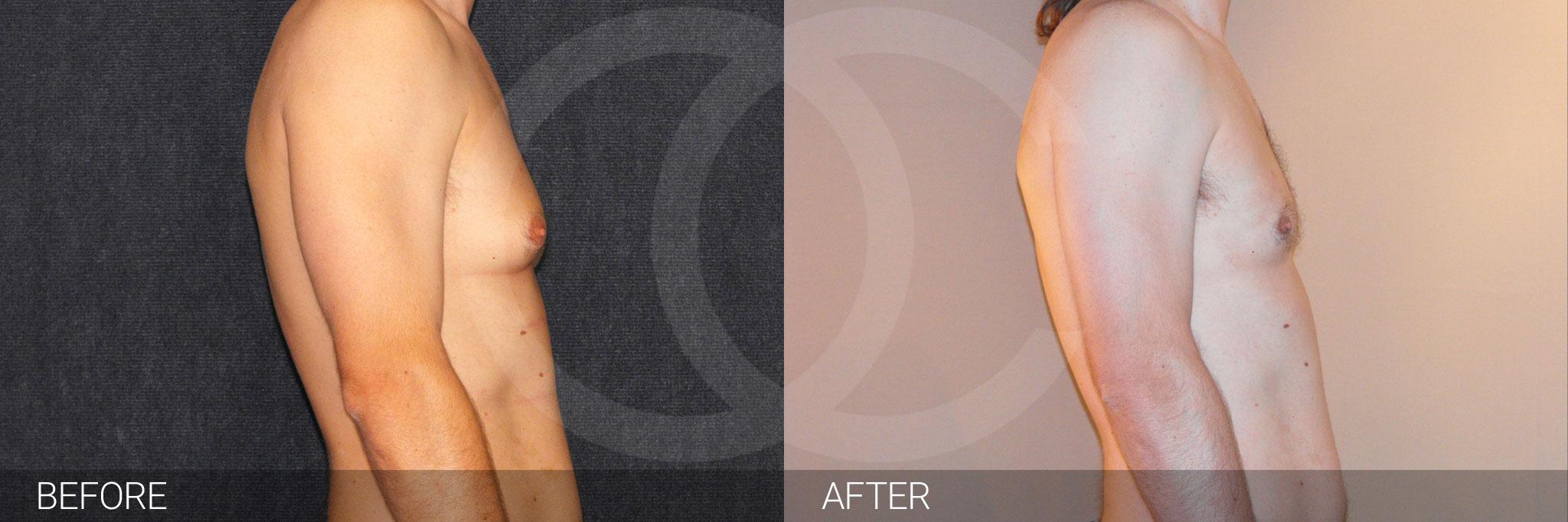 Gynecomastia with liposuction ante/post-op III