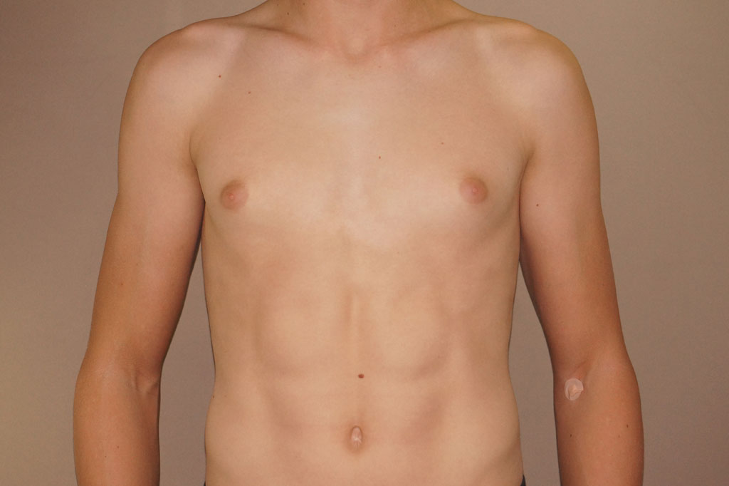 Gynecomastia with partial gland removal before forntal