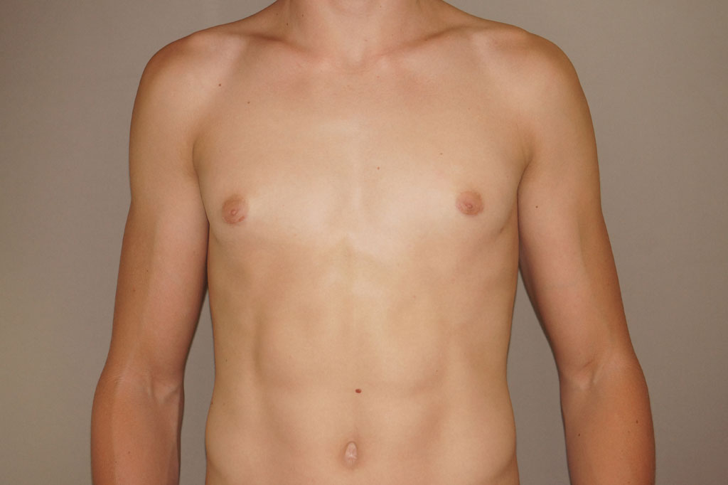 Gynecomastia with partial gland removal after frontal