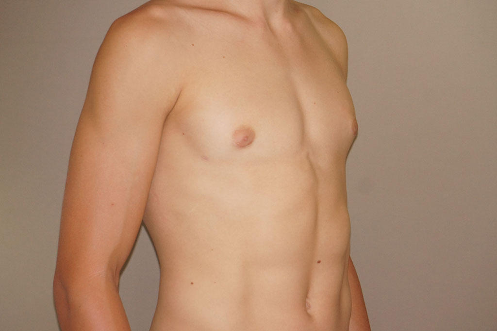 Gynecomastia with partial gland removal after side
