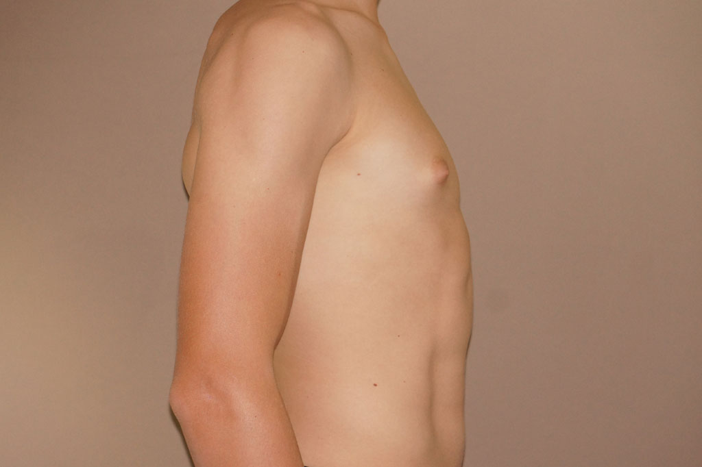 Gynecomastia with partial gland removal before profile