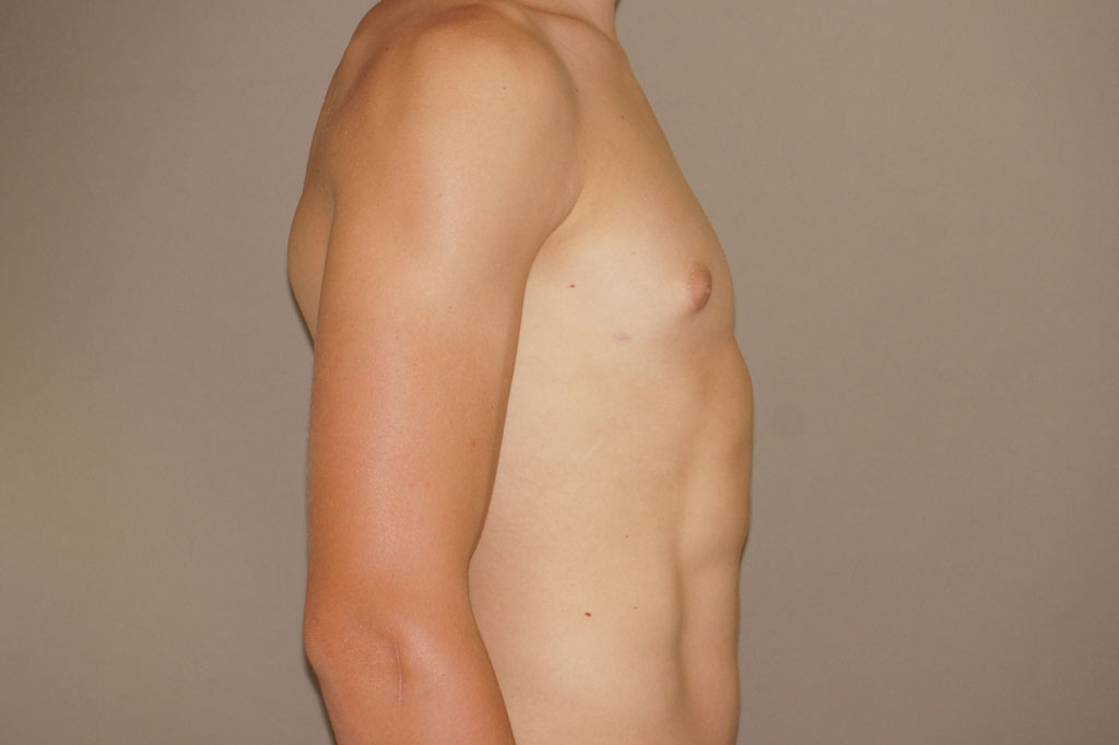 Gynecomastia with partial gland removal after profile