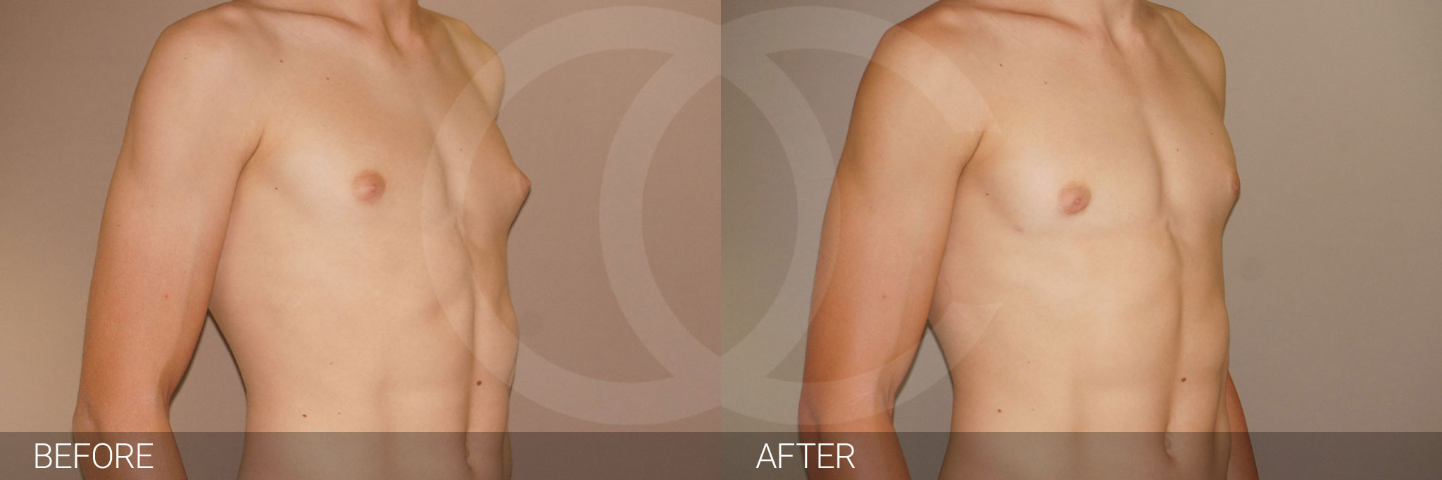 Gynecomastia with partial gland removal ante/post-op II