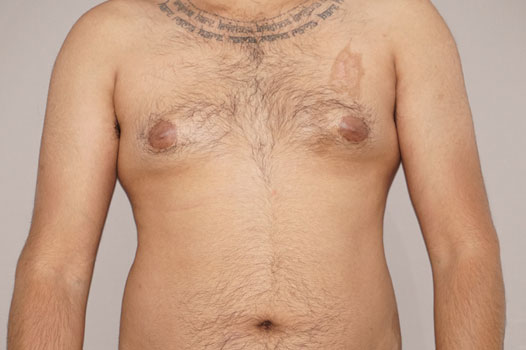 Gynecomastia MALE BREAST (GLAND) REDUCTION before forntal