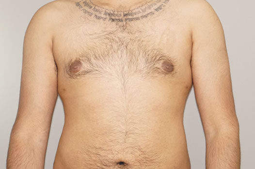 Gynecomastia MALE BREAST (GLAND) REDUCTION after frontal