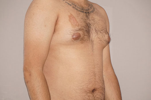 Gynecomastia MALE BREAST (GLAND) REDUCTION before side