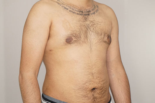 Gynecomastia MALE BREAST (GLAND) REDUCTION after side