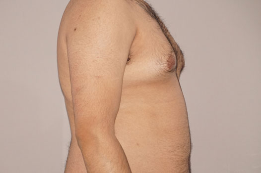 Gynecomastia MALE BREAST (GLAND) REDUCTION before profile