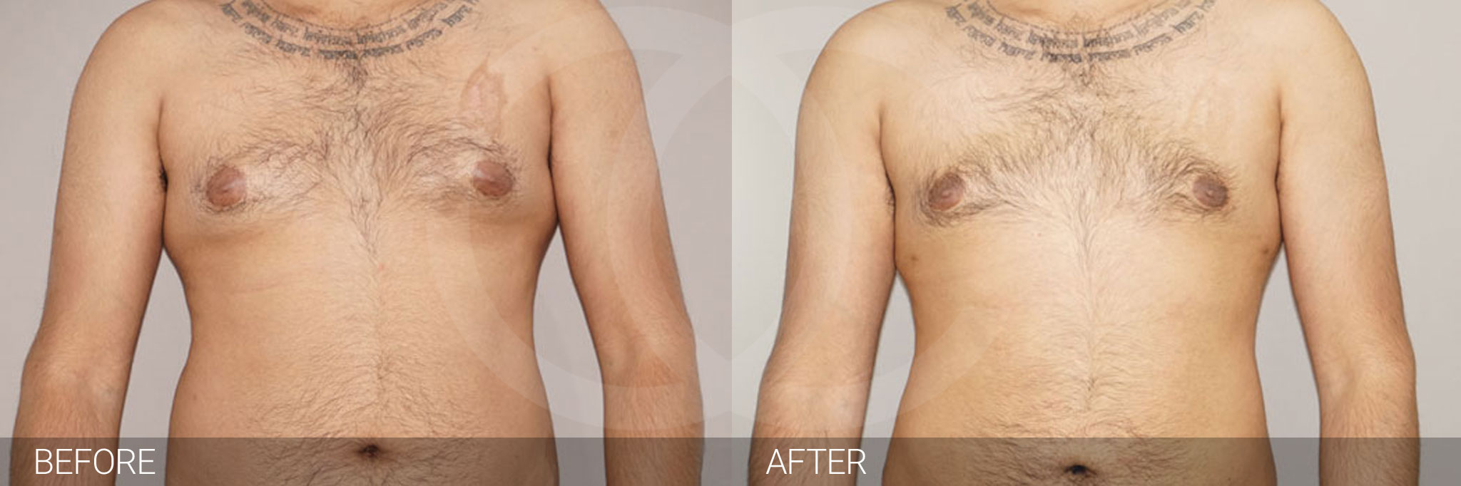 Gynecomastia MALE BREAST (GLAND) REDUCTION ante/post-op I