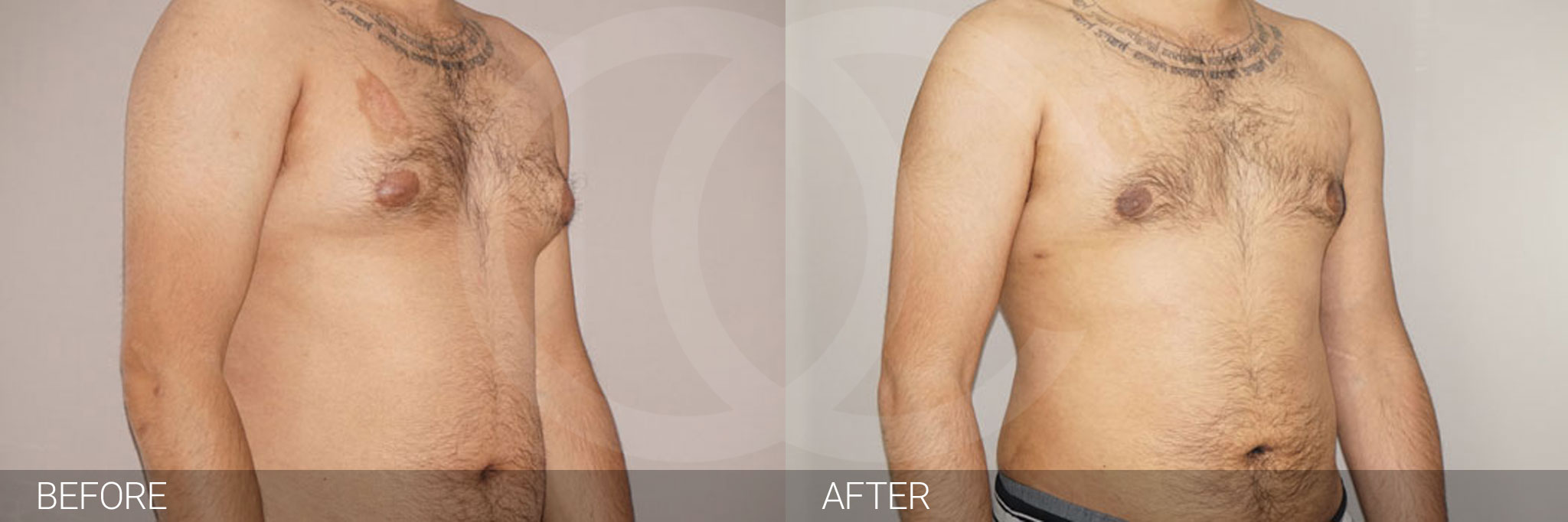 Gynecomastia MALE BREAST (GLAND) REDUCTION ante/post-op II