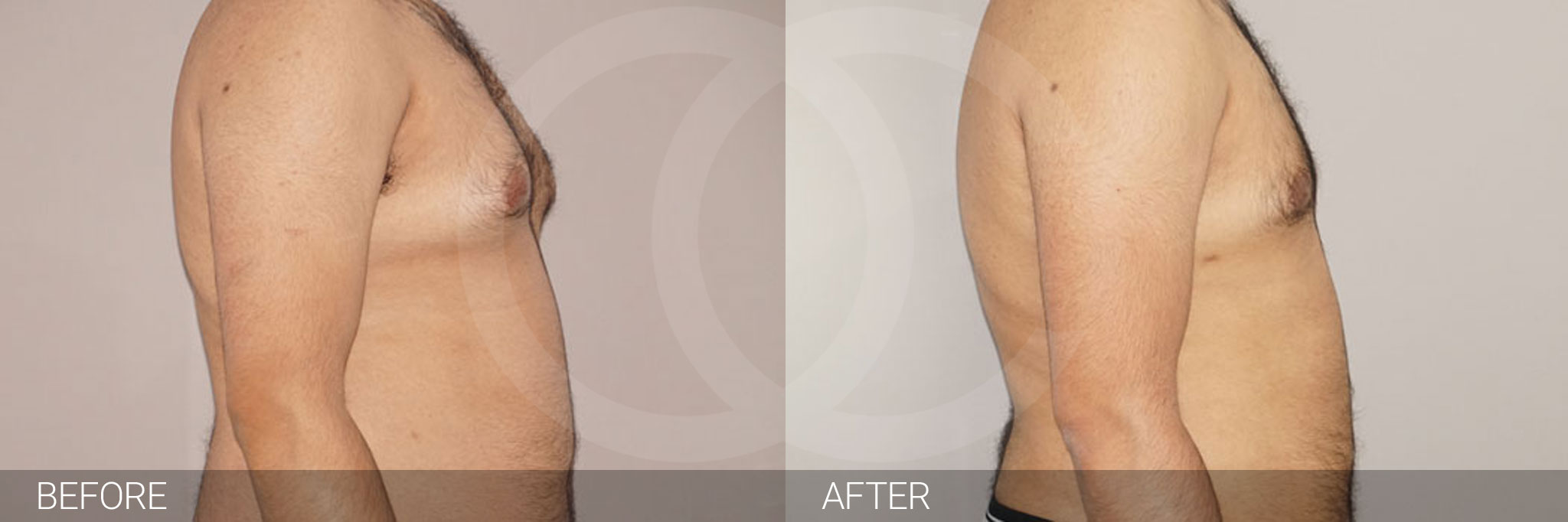 Gynecomastia MALE BREAST (GLAND) REDUCTION ante/post-op III