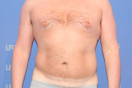 Gynecomastia CHEST, ABDOMEN AND LOVE HANDLES before forntal