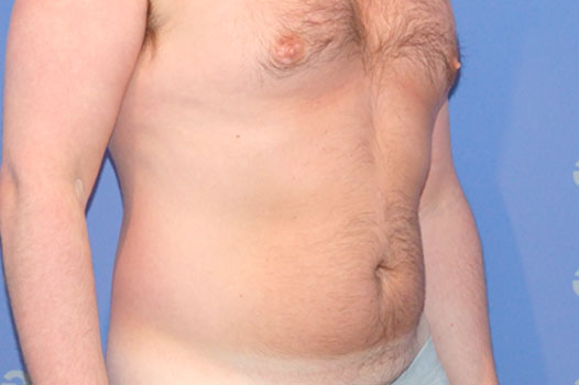 Gynecomastia CHEST, ABDOMEN AND LOVE HANDLES before side