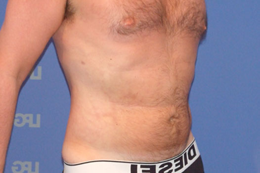 Gynecomastia CHEST, ABDOMEN AND LOVE HANDLES after side