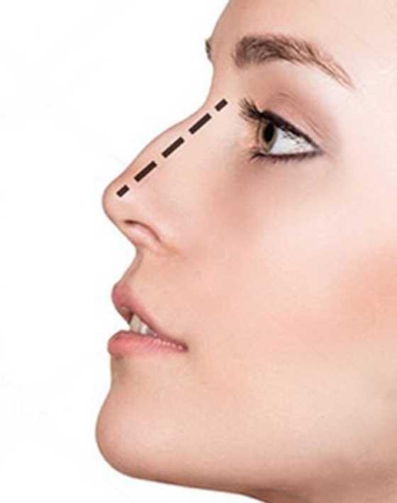 Cirugía de nariz una asombrosa transformación